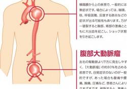 大動脈瘤1